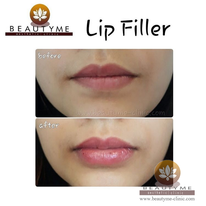 Gallery Filler Bibir Sexy / Lip Filler