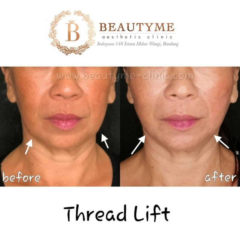 Gallery Tanam Benang Threadlift