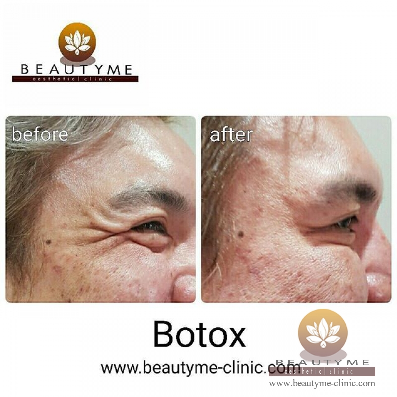 Gallery Botox Cosmetic