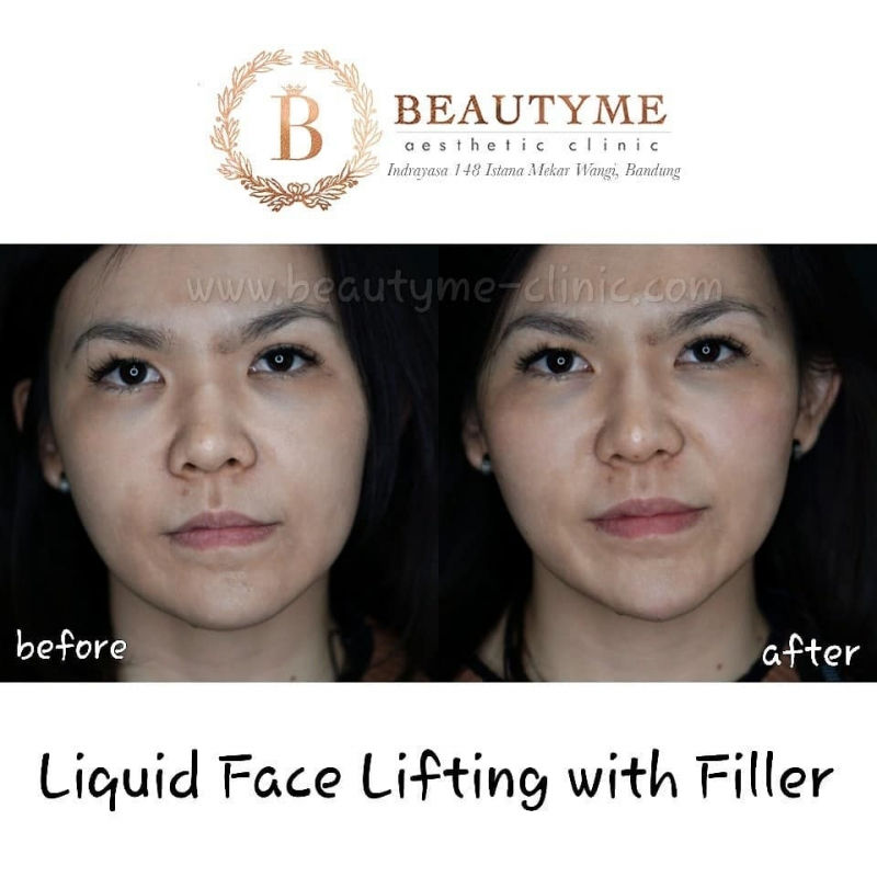 Gallery Liquid Face Lifting With Filler