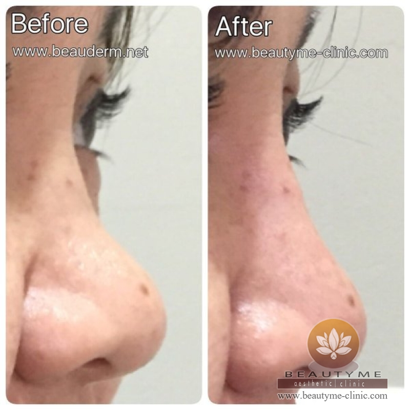 Gallery Nose Filler / Filler Hidung