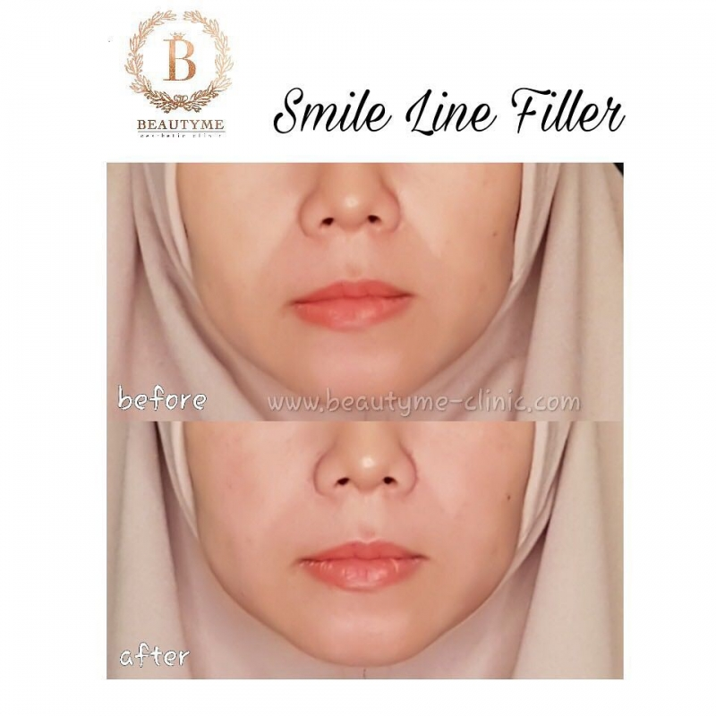 Gallery Smile Line Filler