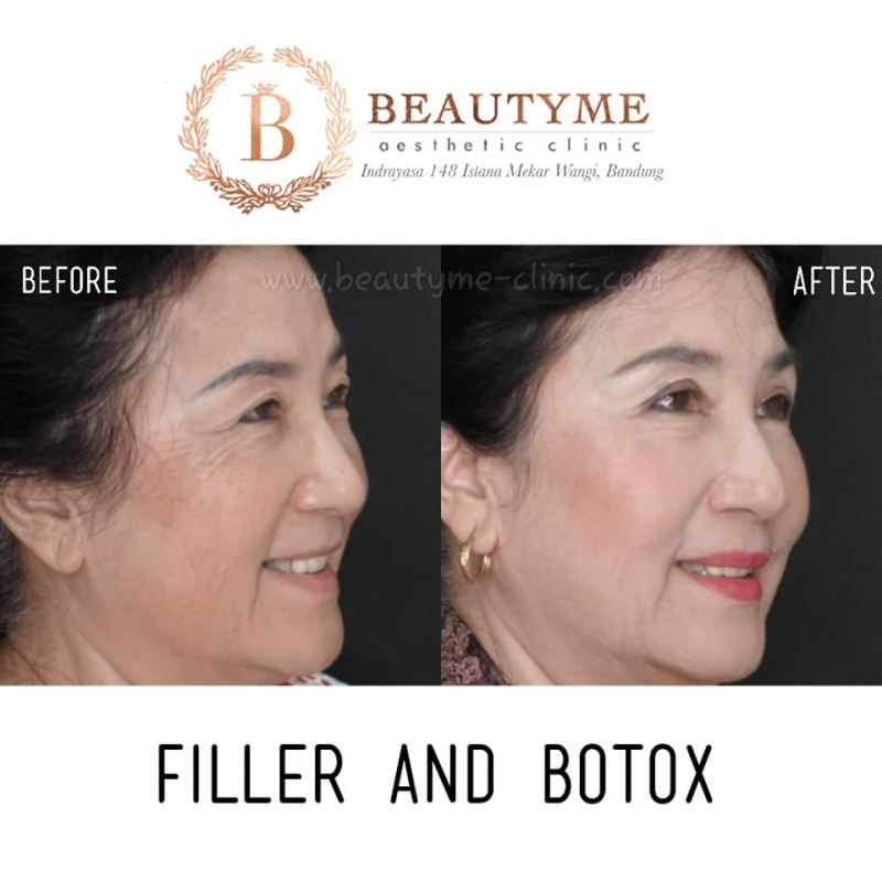 Gallery Botox Cosmetic Before After