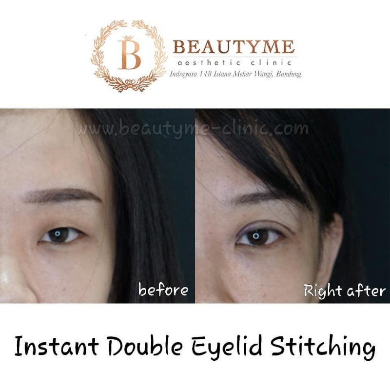 Gallery Instant Double Eyelid