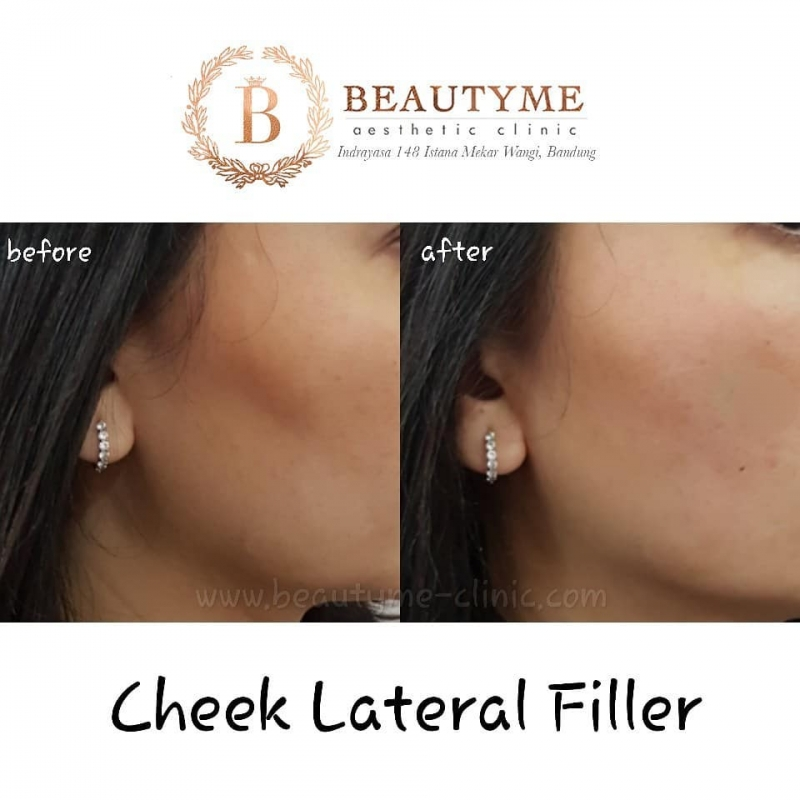 Gallery Cheek Lateral Filler