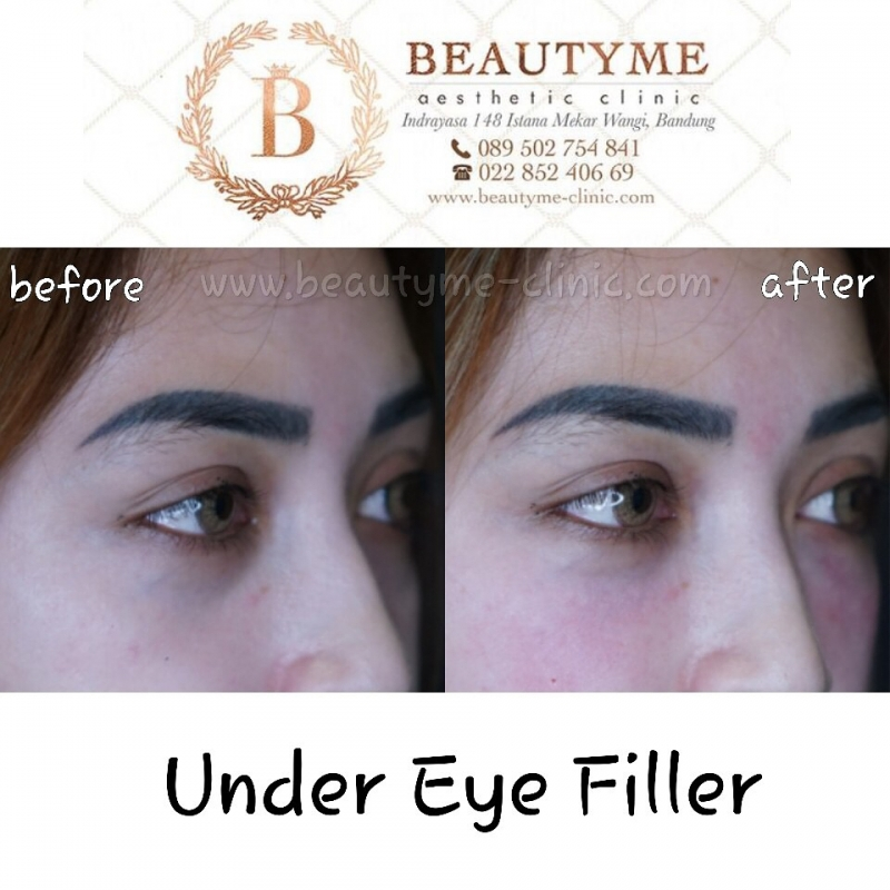 Gallery Eye Filler / Under Eye Filler