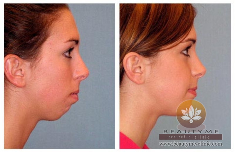 Chin Augmentation Filler