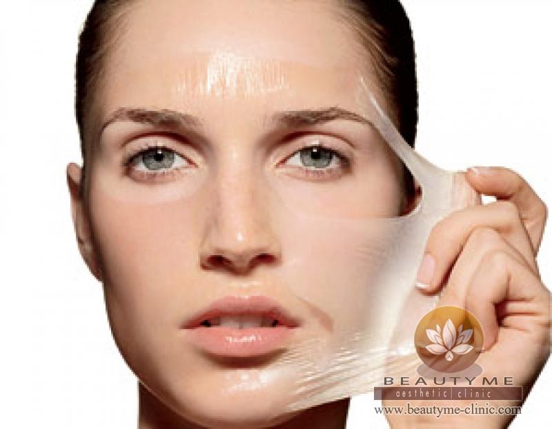 Skin Peeling Anti Anging   klinik-anti-angin   Jawa Barat - BANDUNG