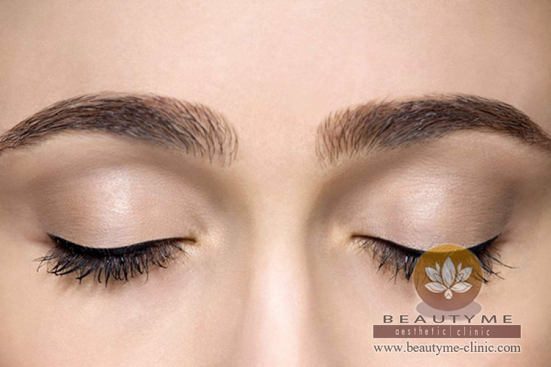 Eyebrow Lift Filler