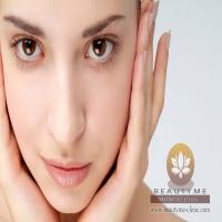 Prosedur Cheek Augmentation