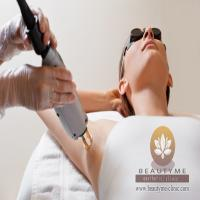 Treatment Hair Removal